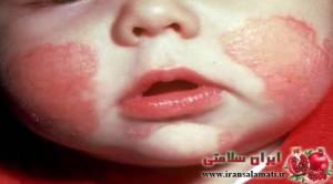 حساسیت غذایی نوزادان -Food sensitivity in neonates