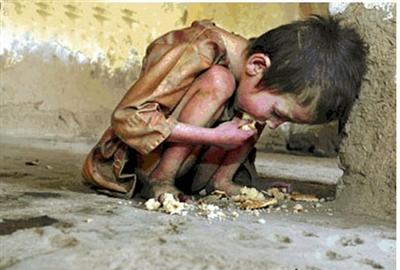 سوءتغذیه